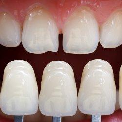 Lentes de contato (Dentística)