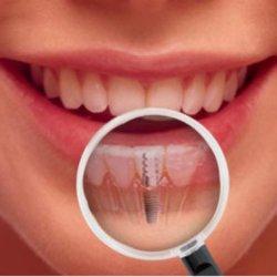 Implantes (Implantodontia)