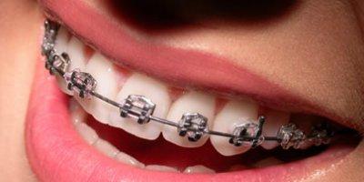 Aparelho Dentário (Ortodontia)
