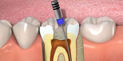 Endodontia (Tratamento de Canal )