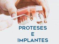Uso próteses ou implantes?