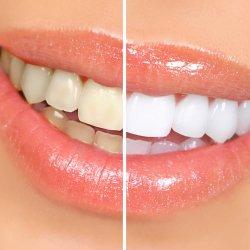 Clareamento (Dentística)